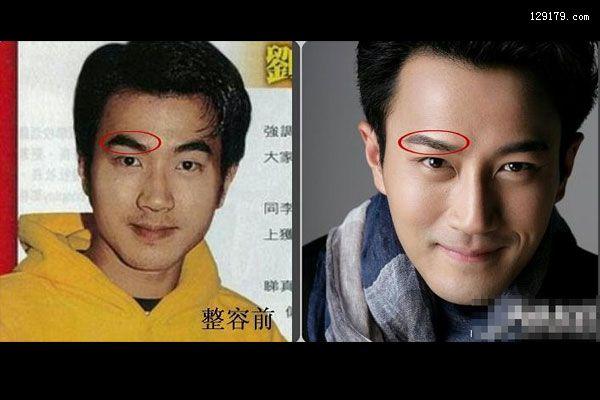 刘恺威整容前后照片整前前后差异大0